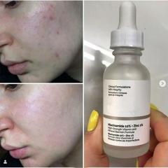 The Ordinary Peeling Solution 30ml